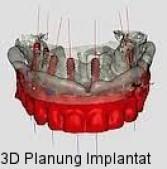 3D Planung Implantat , navigierte Implantationsplanung, Gunzenhausen